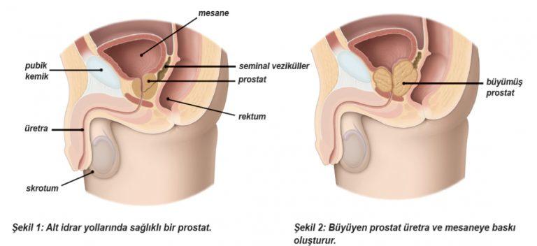 Benign Prostat Hiperplazisi – İyi Huylu Prostat Büyümesi (BPH) Nedir?
