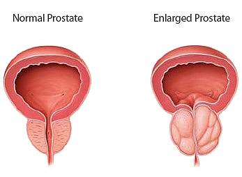 Prostatit Nedir?